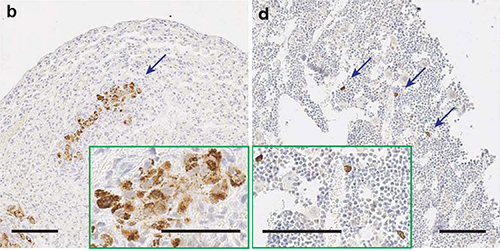 These images show tumors that have metastasized to the lungs (b) and bones (d) in mice that had cancer-associated fibroblasts eliminated after 10 days. [Biju Parekkadan, Massachusetts General Hospital]