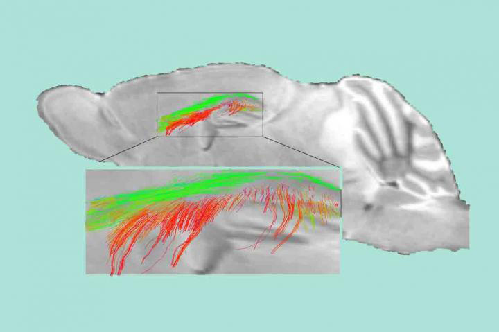 Diffusion MRI maps show disrupted white matter connectivity and loss of white matter fiber tracts in 1-year-old pericyte-deficient mice. [Berislav Zlokovic Lab/Keck School of Medicine of USC]