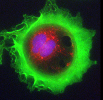 Martin Barr of St James' Hospital and Trinity College Dublin won first place in the High-Content Analysis category for this image: Lung adenocarcinoma cell stained for F-actin (green), mitochondria (red) and DNA (blue). Therapeutic focus: Cancer.