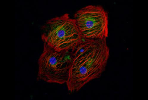 Beating-heart cells derived from iPS cells are shown. A single DNA base-pair of the PRKAG2 gene was edited using the method developed by Drs. Miyaoka and Conklin. [Luke Judge/Gladstone Institutes]