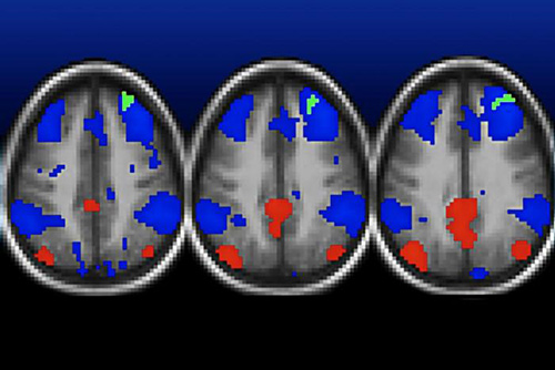 Functional MRI scans show areas in the brains of poor children with normal connectivity highlighted in red and blue and weakened connectivity shown in green. The areas in green are among several areas—detailed in other brain scans—where connections are weakened in children raised in poverty. [Deanna Barch]