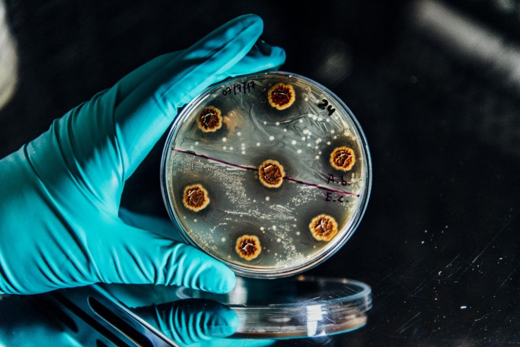 Research paves the way for new rational treatment strategies of multidrug-resistant chronic infections. [Christian Als/The Novo Nordisk Foundation Center for Biosustainability at the Technical University of Denmark]