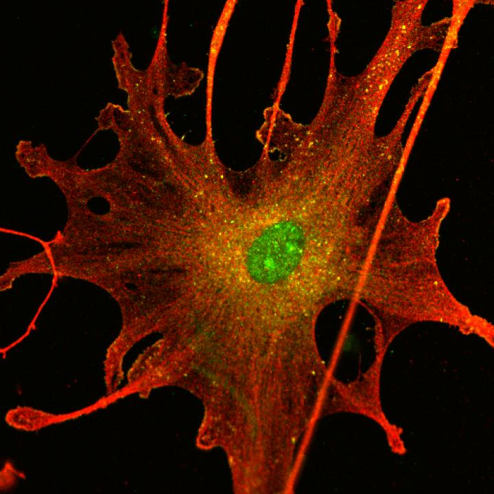 Schwannoma tumor cell.  [University of Plymouth]