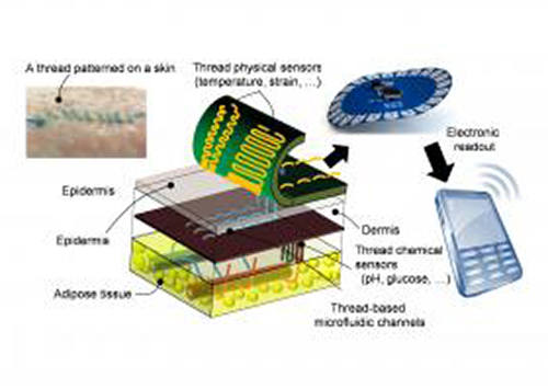 Threads penetrate multiple layers of tissue to sample interstitial fluid and direct it to sensing threads that collect data, such as pH and glucose levels. Conductive threads then deliver the data to a flexible wireless transmitter sitting on top of the skin. The inset figure, upper left, shows liquid flowing in threads sutured into skin. [Nano Lab/Tufts University]