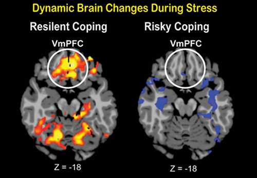 Flexible neural responses were shown in an area of the brain called the ventral medial prefrontal cortex (VmPFC) during sustained stress exposure. [Yale]
