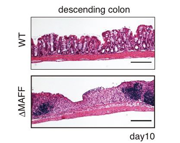 Ten days after being treated with an intestine-damaging drug