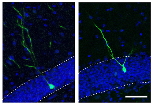 Salk study shows the microRNA (miRNA) miR-19 helps budding adult brain cells stay on track. Overexpessing miR-19 miRNA in neural progenitor cells in the adult brain of mice caused new neurons (green) to move and branch abnormally (right) compared to control neurons (left). [Salk Institute]