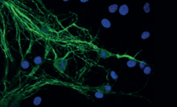 Mitochondria stained in neurons [Mathew Horocks/University of Cambridge