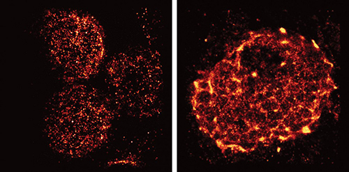 Salk scientists used light-sheet superresolution imaging to capture the rearrangement of T-cell receptors from nanometer-scale protein islands (left) to micrometer-scale microclusters (right) after T-cell activation in mouse lymph nodes. [Salk Institute]