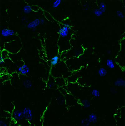 Salk and UC San Diego scientists conducted a vast survey of microglia (pictured here), revealing links to neurodegenerative diseases and psychiatric illnesses. [Nicole Coufal]