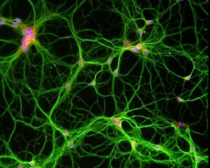 """<i>In vitro</i> and <i>in vivo</i> experiments reveal that memory formation requires that an acetate-dependent metabolic enzyme, acetyl-CoA synthetase 2 (ACSS2), be near specific regions of DNA so that certain genes may be epigenetically regulated. In this image, primary neurons from the hippocampus isolated from a mouse embryo. Axons are green, nuclei are stained blue, and ACSS2 is red, so overlap is pink-purple. [Philipp Mews, Ph.D./Perelman School of Medicine, University of Pennsylvania]"""" width=""""60%"""" height=""""60%"""" /><br /> <span class="""