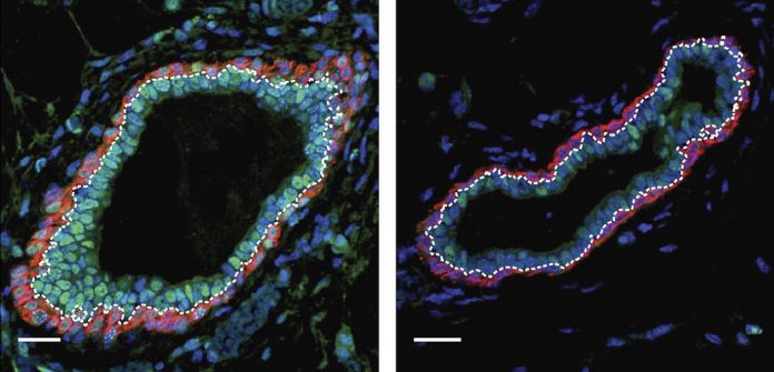 In a study of mammary cell lineage