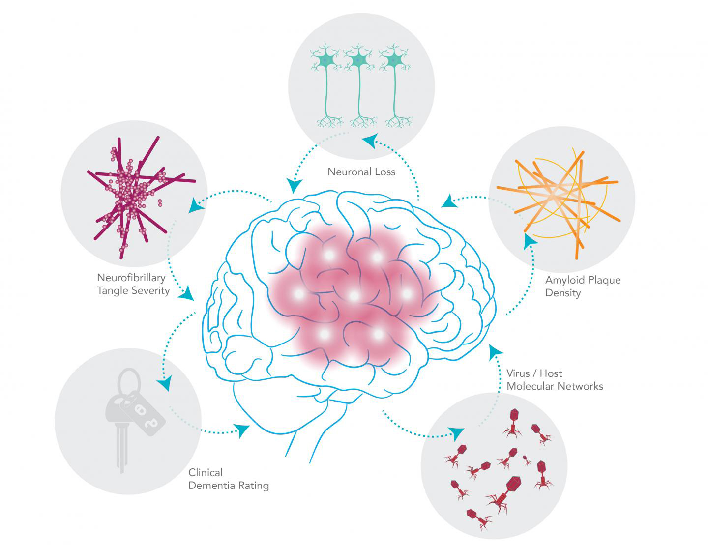 Viral–host networks, including genes and RNA transcripts, interact in complex ways. A pair of herpesviruses—HHV 6A and 7—were found in greater abundance in brain samples from AD patients compared with normal brains. These viruses seem to also be implicated in the AD-related genetic networks responsible for classic Alzheimer's pathology, including cell death, the deposition of amyloid plaque, and production of neurofibrillary tangles. [Shireen Dooling for the Biodesign Institute at ASU]