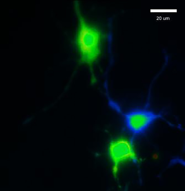 Hippocampal neurons in which we can observe the calcium increase (in green) through NMDA and mGluR5 receptors upon overactivation of adenosine A2A receptors. [Mariana Temido/iMM]
