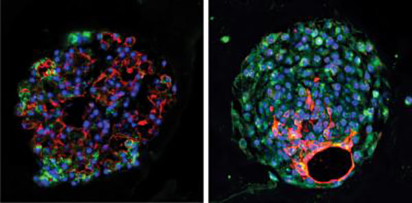 Mouse (left) and human (right) alveolar progenitor cells grow into large lung organoids in culture and make multiple types of epithelial cells
