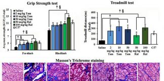 This is the effect of one year of tamoxifen and raloxifene treatment on muscle function (by grip strength and treadmill exercise) and fibrosis shown by Masson's trichrome staining of the tibialis anterior muscle. (Tan and T) Tamoxifen; (Ral and R) raloxifene. [The American Journal of Pathology]