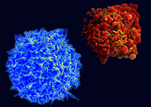 Human T cell from the immune system of a healthy donor and image of an HIV-infected T cell. [NIH]