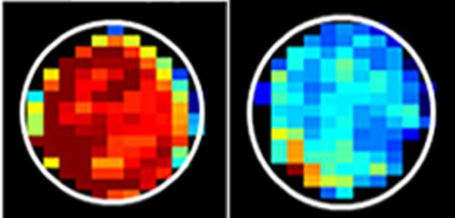 A new MRI technique shows that mucin-attached sugars generate a high MRI signal (left) compared to cancerous cells (right) [Xiaolei Song/Johns Hopkins Medicine]