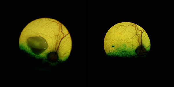 A view of the eye of a dog affected by the canine equivalent of Best disease before (left) and five years after (right) the gene therapy underscores how the treatment reversed a sizeable lesion—and lasted. The black mark visible on the treated eye is the injection site. [University of Pennsylvania]