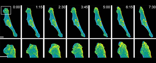 A protein-activation mechanism has been implicated in the remodeling of the cellular periphery and the promotion of metastatic behavior. [McGill University]
