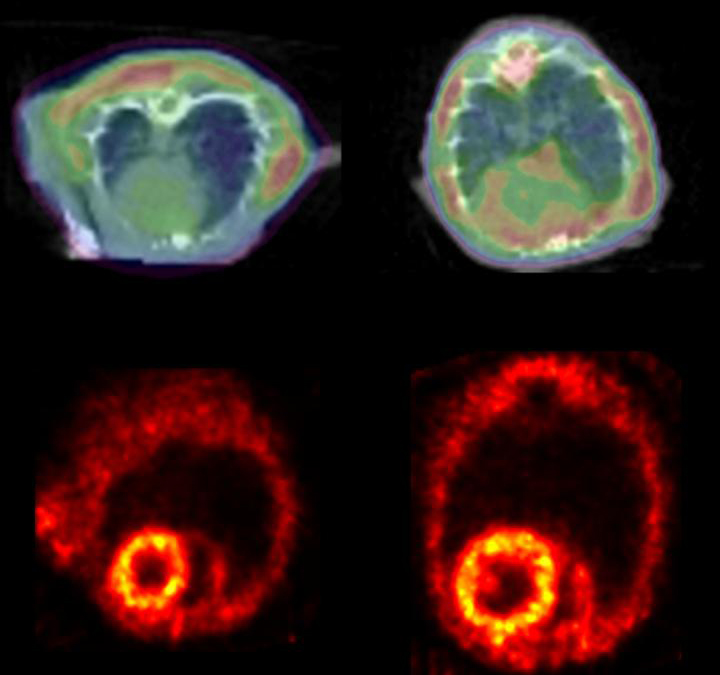 A study of acquired heart failure implicates a protein clumping mechanism triggered by a mono-phosphorylated form of desmin. The study also shows that toxic clumping can be detected by positron emission tomography (PET). (Top) A PET scan detects clumping proteins in rat hearts. (Right) The enlarged heart is one with heart failure. (Bottom) Other PET scans showing blood flow in the rat hearts show that the protein clumps aren't due to circulation problems. [Courtesy of Circulation Research