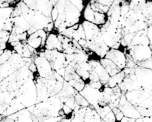 Mouse induced neurons generated from a novel transcription factor pair Neurog2/Brn2. Cells stained for neuron-specific beta-III tubulin expression (Tuj1). [Baldwin Lab/The Scripps Research Institute]