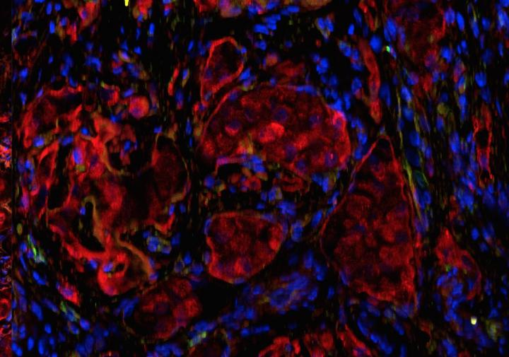 Fluorescence microscopy of islets in the omentum transplanted within the biologic scaffold. Red indicates insulin staining; blue indicates DAPI nuclear staining. [Diabetes Research Institute/University of Miami Miller School of Medicine]