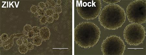 This image shows human neurospheres infected with the Brazilian Zika virus after 96 hours. Compared to mock-infected controls, the neurospheres show dramatic cell death with arrested growth, resulting is significantly reduced size. [UC San Diego Health]