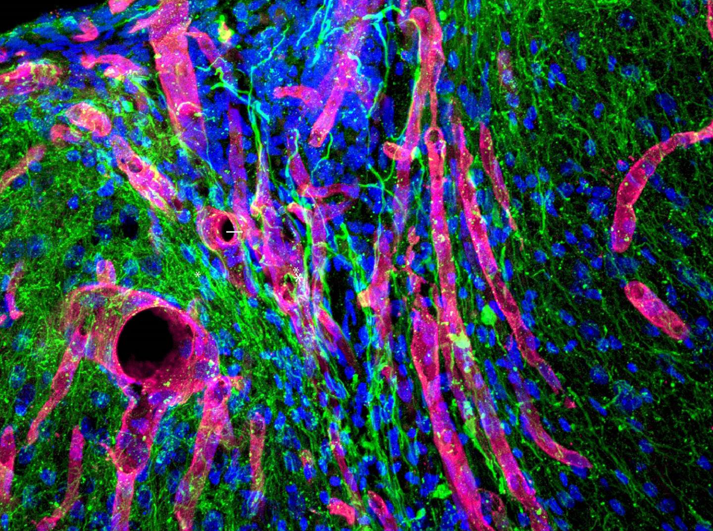VEGF Biogel Promotes Brain Tissue Growth and Limb Recovery after