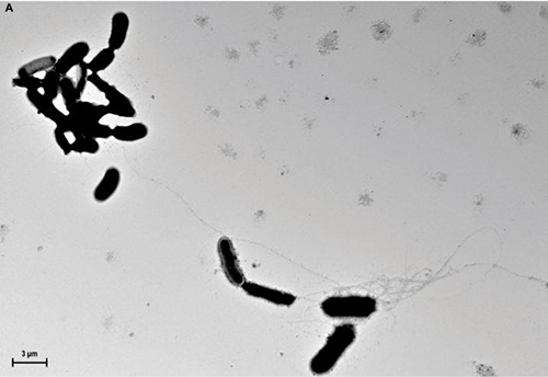 The ability of amyloid-beta (Aß)  to form aggregates and trap bacterial pathogens has been demonstrated both in culture and also in mouse and worm models. This image shows Aß fibrils propagating from yeast cells in culture medium. Such fibrils mediate agglutination and eventually imprison unattached microbes. [D.K.V. Kumar et al./Science Translational Medicine (2016)]