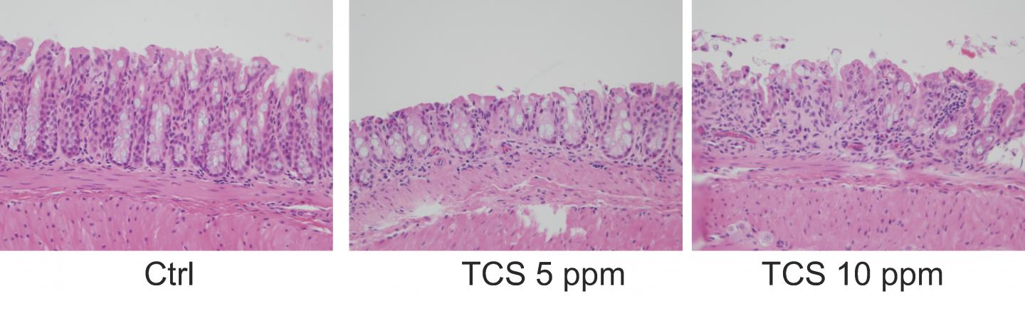 Exposure to triclosan (TCS) exacerbated the severity of colitis and inflammation in mice.  [H. Yang et al., Science Translational Medicine (2018)]