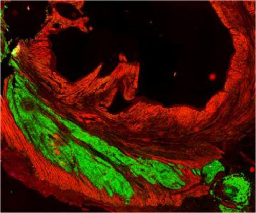 This image shows an implanted graft of cardiac cells derived from human stem cells (green) meshed and beat with primates' heart cells (red). [Murry Lab/University of Washington]