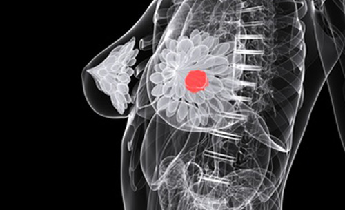Automated C-Path system developed by Stanford researchers takes thousands of measurements not currently used to grade breast cancer tumors.[© Sebastian Kaulitzki - Fotolia.com]