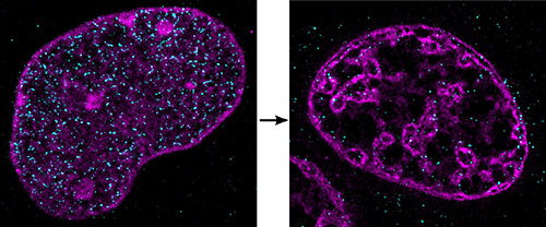 DNA forms highly unusual, dense clusters when cells are starved of oxygen and nutrients. These images, obtained by super-resolution microscopy, show DNA in a cell nucleus under normal (left) and ischemic (right) conditions. [Aleksander Szczurek, Ina Kirmes]