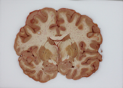 The Allen Human Brain Atlas, a data set derived from analyses of tissue samples such as the one shown here, was used in an investigation of differential transcription across 132 structures in six individual brains. The investigation revealed that a set of just 32 gene-expression signatures defines, in large part, a common network architecture that is conserved across the human population. [Allen Institute for Brain Science]