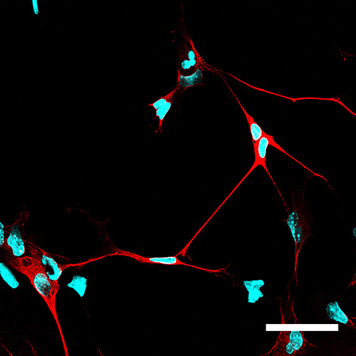 Figure 1: Cells in which NeuroD1 is turned on are reprogrammed to become neurons. Cell nuclei are shown in blue (Höchst stain) and neurons are shown in red (stained with neuronal marker TUJ1). [A. Pataskar