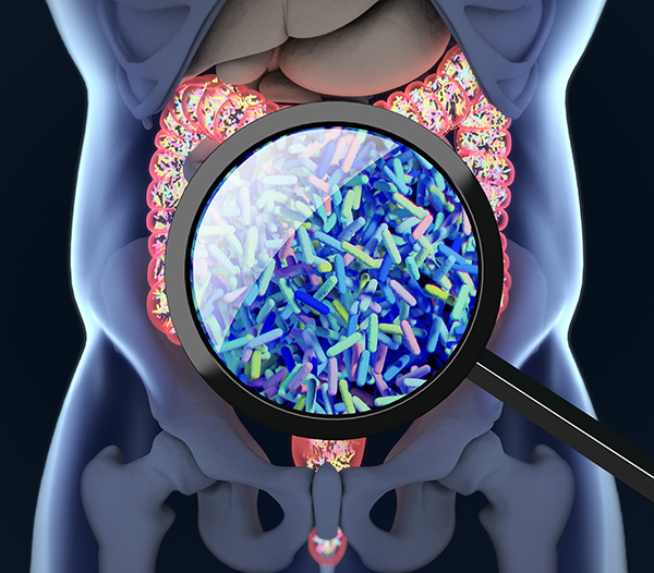 Microbiome Link With Colorectal Cancer Drug Toxicity Points To Predictive Tests And Prevention