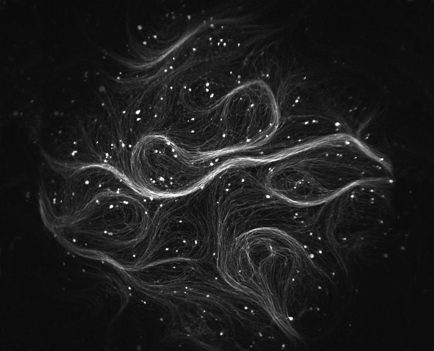 The new Firefly microscope is optimized to perform optogenetic studies examining many neurons at once. Each bright spot here represents a neuron from a genetically modified mouse. [Vaibhav Joshi/Harvard University]