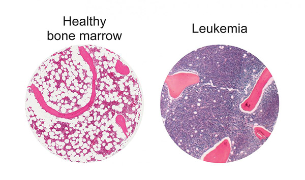 Bolstering adipogenesis in the bone marrow niche may curb leukemia