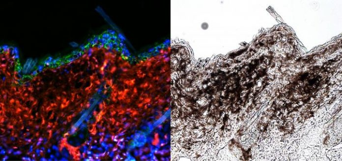 """Skin cancer has been traced back to the ultraviolet stimulation of melanocyte stem cells that are """"melanoma competent"""