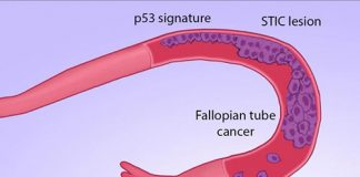 A genomic study suggests that most ovarian cancers originate in the fallopian tube. [Carolyn Hruban]