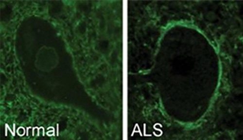Antibodies surround a healthy motor neuron cell (left) and move to the outer cell membrane in ALS (right). [University of Toronto]