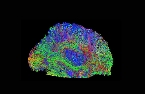 Scientists are beginning to crack the brain's genetic code—discovering how variations in our DNA affect the development and structure of our brains. In a recent genome-wide association study, scientists identified five previously unknown loci for brain size and confirmed two known signals. Variants were also related to childhood and adult cognitive function as well as the risk for Parkinson's disease. [Paul Thompson/ENIGMA Center, USC]