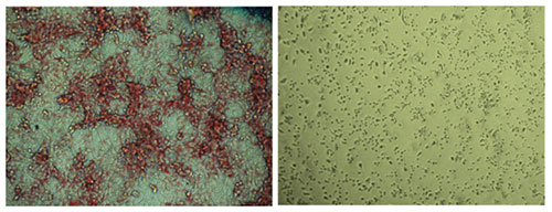 Salk Institute researchers and collaborators develop novel cancer treatment that halts fat synthesis in cells. Placebo-treated cells (left) have far more lipid (red) production compared to ND-646–treated cells (right). [Salk Institute]