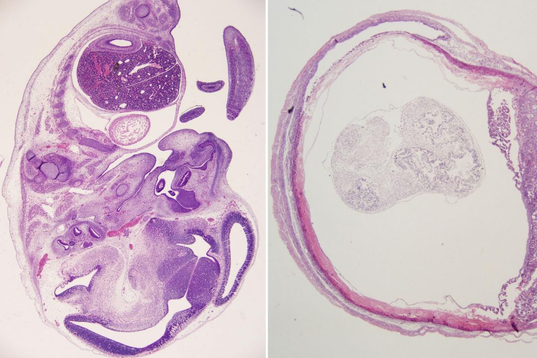 An antibody administered soon after infection with Zika virus protected the fetuses of pregnant mice (left)
