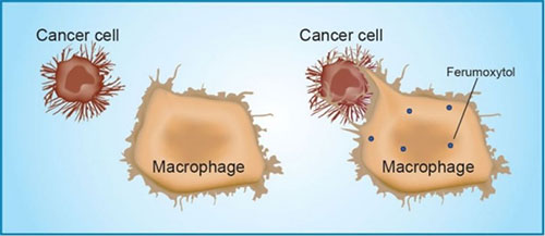 A mouse study found that ferumoxytol prompts immune cells called tumor-associated macrophages to destroy tumor cells. [Amy Thomas]