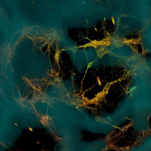 A confocal microscope image of neurons (greenish yellow) attached to a silk-based scaffold (blue). The neurons formed networks throughout the scaffold pores (dark areas). [Tufts University]