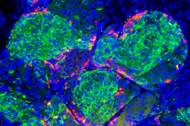 Insulin-producing pancreatic beta cells (green) derived from human embryonic stem cells that have formed islet-like clusters in a mouse. [NIH]