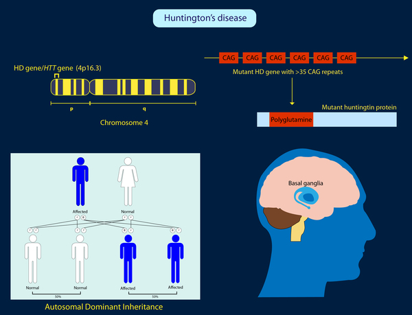 Huntington disease is an inherited, progressive brain disorder that causes uncontrolled movements, emotional problems, and loss of thinking ability (cognition). [NIH]