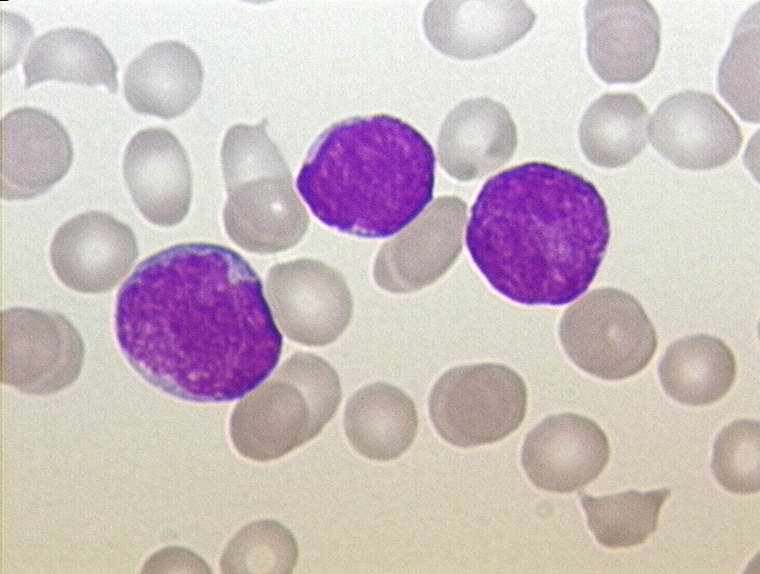 ALL Leukemia Cells [Christaras A
